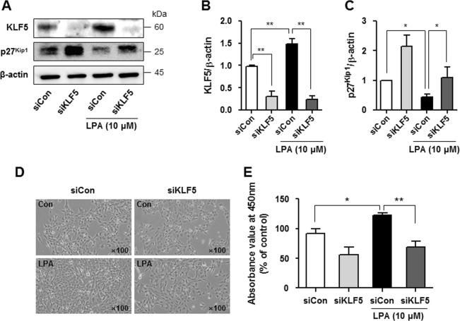 Downregulation of KLF5 inhibits the LPA-induced proliferation of SV40 MES13 cells. a Cells were transfected with a scrambled siRNA (siCon) or KLF5 siRNA (siKLF5) for 48 h and treated with LPA (10 μM) for 6 h, and the levels of the KLF5 and p27 Kip1 proteins were determined using western blotting. b , c The relative levels of the proteins were normalized to β-actin and quantified using ImageJ software ( n = 3 independent experiments). d Cell morphology was examined using light microscopy (original magnification, × 100), and ( e ) cell proliferation was analyzed using CCK-8 assay after treatment with 10 μM LPA and transfection of the KLF5 siRNA or scrambled siRNA for 24 h ( n = 3 independent experiments). * p