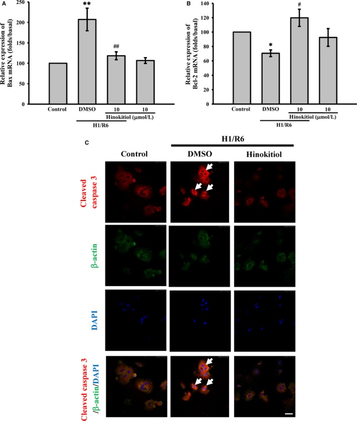 Effects of hinokitiol on H1/R6‐induce apoptosis of primary hepatocytes. Primary hepatocytes were incubated with DMSO or hinokitiol (5 or 10 μmol/L) prior to H1/R6. The total RNA was extracted and converted to cDNA . Specific primers were used to detect the gene expression of (A) Bax and (B) Bcl‐2. Each sample was examined in triplicate, and the amounts of the PCR products produced were normalized to GAPDH , as an internal control. The data are presented as the means ± SEM (n = 4). * P