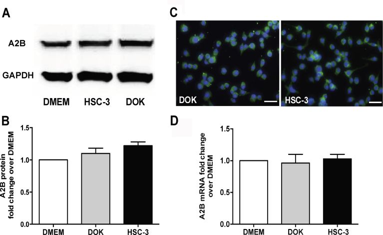 A2B receptors are expressed in Schwann cells. (A) Western blot image of A2B expression in RSC-96 cells. GAPDH is used as a housekeeping control. Relative expression of A2B protein in RSC-96 cells co-cultured with <t>DOK</t> or HSC-3 is presented as fold change over <t>DMEM</t> treated RSC-96 cells. (B) Western blot quantification of A2B protein expression in RSC-96 cells. (C) Immunofluorescence labeling of the A2B receptor (green) and nucleus (DAPI, blue) in RSC-96 cells co-cultured with either DOK or HSC-3. Scale: 100 μm. (D) Relative A2B mRNA fold change in RSC-96 cells co-cultured with either DOK or HSC-3 over control RSC-96 cells. No differences are detected across different groups. Kruskal-Wallis test followed by Dunn's multiple comparison analysis.