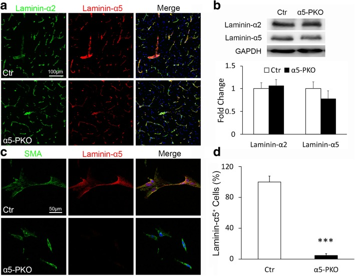 Lama5 expression is abrogated in mural cells in α5-PKO mice. a Representative images of laminin-α2 (green) and laminin-α5 (red) staining in the cortex of control and α5-PKO mice. Scale bar = 100 μm. b Representative western blotting and quantification of laminin-α2 and laminin-α5 levels in the cortex of control and α5-PKO mice. n = 4. c Representative images of smooth muscle actin-α (SMA, green) and laminin-α5 (red) staining in primary mural cells isolated from control and α5-PKO brains. Scale bar = 50 μm. d Quantification showing the lack of laminin-α5 expression in primary mural cells isolated from α5-PKO brains. n = 6 independent experiments with at least 50 cells examined in each experiment. Student's t -test, *** p