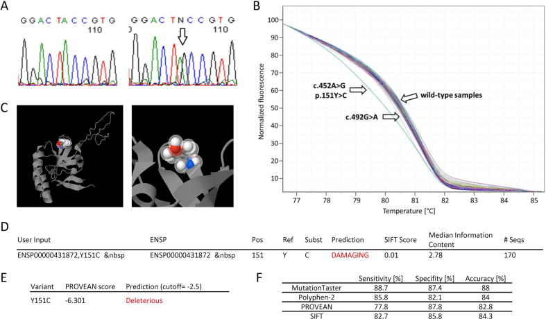 Identification, screening and prediction of functional impact of c.452A > G (p.Y151C). A: Identification of mutation c.452A > G (p.Y151C) by Sanger sequencing in a heterozygous breast cancer patient (right, arrow) compared with the wild-type sequence (left). B: High Resolution Melting analysis showing melting curves of the two variants c.452A > G (p.Y151C), c.492G > A, and wild-type samples. C: 3D-model of TPT1 by Polyphen-2 showing altered amino acid as part of a beta sheet structure. D,E: Prediction results by SIFT-analysis (D) and PROVEAN-analysis (E) showing damaging impact of c.452A > G (p.Y151C) F: comparison of prediction tool performance.