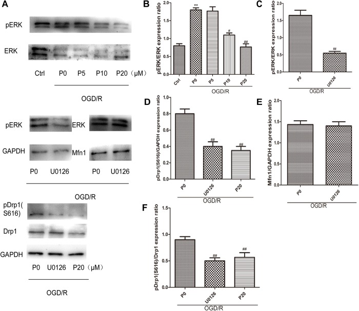 Propofol could inhibit Drp1 phosphorylation through decreasing ERK activation in H9c2 cells during OGD/R. (A) Representative bands of pERK, ERK, pDrp1, Drp1 and Mfn1 by western blotting. (B) With the increase of propofol concentration (10, 20 μM), the levels of pERK were significantly decreased during OGD/R injury. (C) <t>U0126</t> can markedly inhibit ERK phosphorylation. (D,F) The levels of pDrp1 (S616) during OGD/R were significantly decreased by 20 μM propofol and U0126. (E) There was no significant difference in the levels of Mfn1 between OGD/R group without propofol and OGD/R group with U0126. The data are presented as the mean ± SD of at least three independent experiments. ∗∗ P