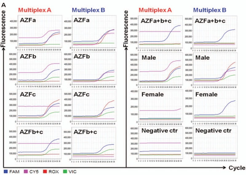 Y chromosome microdeletions detected by multiplex PCR using AZF specific STSs makers. (A) Multiplex PCR amplification results for various Y chromosome microdeletion types in multiplex A: SYR (FAM), sY84 (VIC), sY127 (ROX), sY255 (Cy5) and multiplex B: ZFX/ZFY (FAM), sY86 (VIC), sY134 (ROX), sY254 (Cy5). AZFa (sY84, sY86), AZFb (sY127, sY134), AZFc (sY254, sY255), AZFb + c and AZFa + b + c deletions were detected in different patients. gDNA from healthy male were used as the positive control. gDNA from female and water was used as the negative control. SYR and ZFX/ZFY were used as the internal reference. AZF = azoospermia factor, gDNA = genomic DNA, PCR = polymerase chain reaction, SYR = sex-determining region of the Y chromosome, ZFX = zinc finger protein, X-linked, ZFY = zinc finger protein, Y-linked.