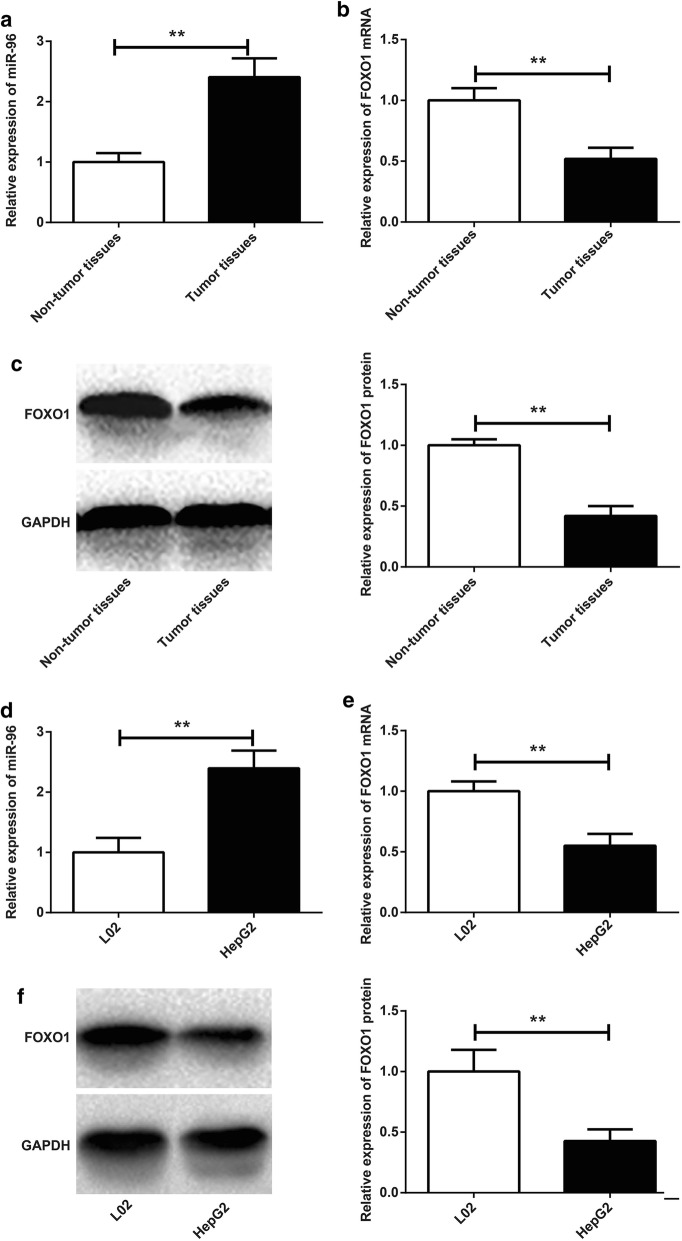 Up-regulation of miR-96 and down-regulation of FOXO1 in tumor tissues and HepG2 cells. a miR-96 relative expression in tumor tissues and non-tumor tissues by qRT-PCR; b FOXO1 mRNA relative expression in tumor tissues and non-tumor tissues by qRT-PCR; c FOXO1 protein relative expression in tumor tissues and non-tumor tissues by Western blot; d miR-96 relative expression in L02 and HepG2 cells by qRT-PCR; e FOXO1 mRNA relative expression in L02 and HepG2 cells by qRT-PCR; f FOXO1 protein relative expression in L02 and HepG2 cells by Western blot. ** P