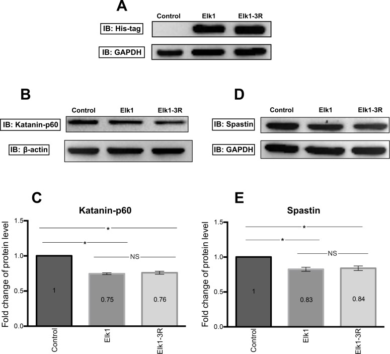 Western blotting results of Elk1 and Elk1-3R effects on both endogenous katanin-p60 and spastin proteins. (A) Analysis of SH-SY5Y transfection efficacy with His-tag including pCMV6_Elk1 and pCMV6_Elk1-3R vectors. (B) Western blotting results showing katanin-p60 level in untransfected (control), pCMV6_Elk1 transfected, and pCMV6_Elk1-3R transfected SH-SY5Y cells. Transfection experiment was performed two times on separate days and Western blotting experiment was performed two times with each sample. (C) Quantification of katanin-p60 level was performed by normalizing band intensities of katanin-p60 to band intensities of ß-actin. Results indicated that both Elk1 and Elk1-3R decreased the katanin-p60 level significantly and the difference between them was not significant. SEM values are 0, 0.01, and 0.02, respectively (n = 4). (D) Western blotting results showing spastin level in untransfected (control), pCMV6_Elk1 transfected, and pCMV6_Elk1-3R transfected SH-SY5Y cells. Transfection experiment was performed two times on separate days and Western blotting experiment was performed two times with each sample. (E) Quantification of spastin level was done as previously described. Results indicated that there was no significant spastin level difference between Elk1 and Elk1-3R transfected cells. However, they were significant compared to untransfected cells. SEM values are 0, 0.03, and 0.03, respectively (n = 4).