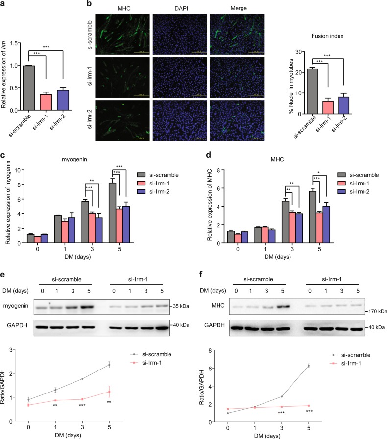 Knockdown of Irm inhibits myogenic differentiation. a Relative expression levels of Irm in C2C12 cells expressing si-scramble or si-Irm, as detected by qRT-PCR. b The differentiation of Irm -knockdown C2C12 cells was detected by staining for MHC at 96 h in DM. Fusion index was calculated. Scale bars, 50 mm. c, d The mRNA levels of myogenin ( c ) and MHC ( d ) were detected by qRT-PCR in Irm -knockdown C2C12 cells at 0, 1, 3, and 5 days in DM. e, f The protein levels of myogenin ( e ) and MHC ( f ) were detected by western blotting in Irm -knockdown C2C12 cells at 0, 1, 3, and 5 days in DM. Myogenin protein levels were normalized to GAPDH protein levels. Data shown represent the mean ± SEM of three independent experiments. * P