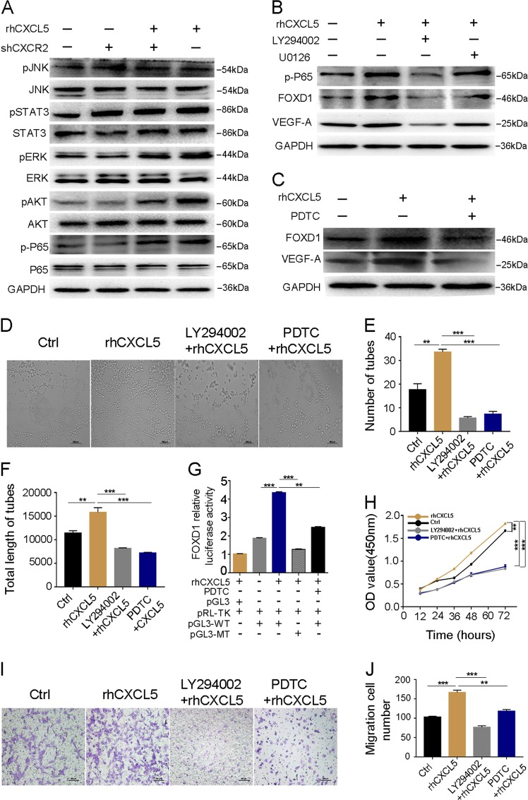 CXCL5/CXCR2 axis promotes FOXD1 activity through the AKT/NF-κB pathway. a Screening of CXCL5/CXCR2 downstream signaling pathway using western blot after different treatments in HUVECs. b Western blot shows that the AKT pathway rather than the ERK pathway regulates the expression of FOXD1 and VEGF-A using pathway inhibitors U0126 and LY294002. c Western blot analyses of p-P65, FOXD1, and VEGF-A in indicated groups after using the NF-κB inhibitor PDTC. d Images of HUVEC tube formation in indicated groups. Scale bars, 200 μm (magnification ×40). e , f Number of tubes and total length of tubes in different groups. Inhibitor of LY294002 and PDTC obviously inhibited the ability of HUVEC tube formation. g A reporter plasmid for FOXD1 (pGL3-FOXD1) was generated by cloning the FOXD1 promoter region (WT) or its NF-κB binding site mutants (MT) into the pGL3 basic vector. rhCXCL5 significantly increased the luciferase activity of the FOXD1 promoter region (WT), while the activity was significantly decreased when transfected with MT sequence. Meanwhile, FOXD1 luciferase activity can be inhibited by PDTC. h CCK8 assay in different groups. Inhibitor of LY294002 and PDTC noticeably reduced HUVEC proliferation ability. i Images of transwell assay in different groups. Scale bars, 100 μm (magnification ×100). j The migration ability of HUVECs was suppressed by the inhibitor of LY294002 and PDTC. Data represent the mean ± SD, * P