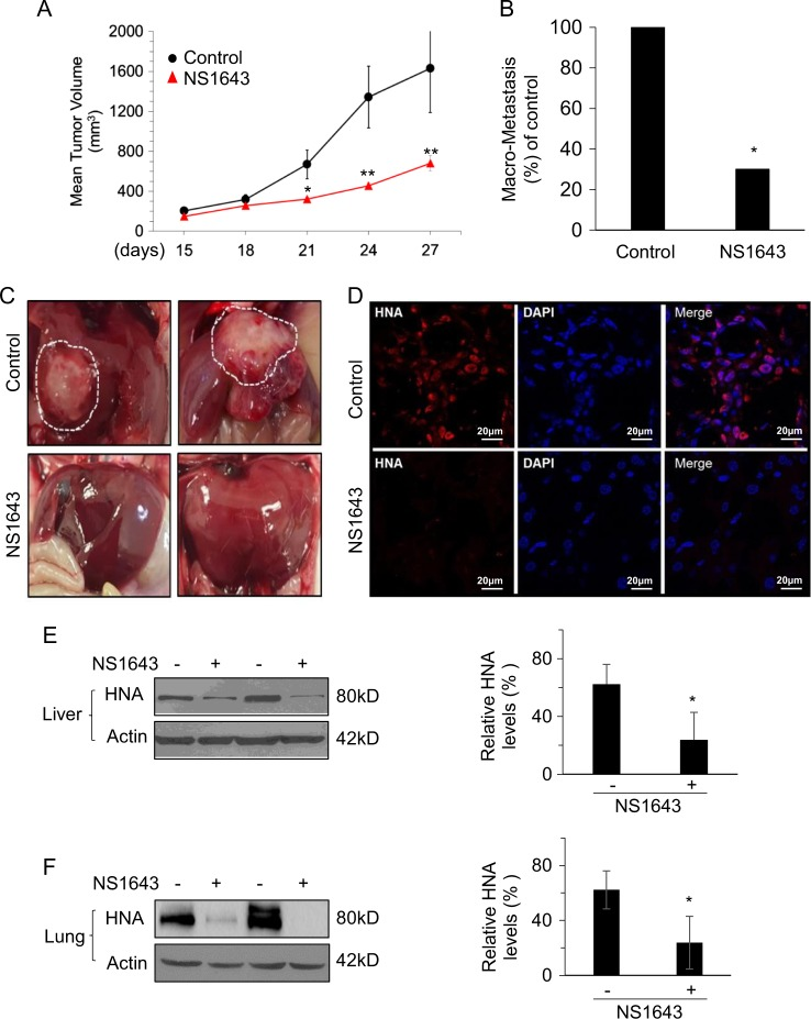 Kv11.1 stimulation inhibits primary tumor growth and metastasis in\ a xenograft model of breast cancer. MDA-MB-231 cells were injected subcutaneously into the dorsal flank of NSG mice. When tumors were palpable, the mice were injected intraperitoneally with vehicle alone or Kv11.1 activator NS1643 at 6 mg/kg every 2 days. a Mean tumor volume in mice treated with either vehicle control ( n = 12) or Kv11.1 activator (NS1643) ( n = 12). b Barchart showing the absolute frequencies of liver macrometastases observed in mice treated with either vehicle control or NS1643. c Representative images of livers demonstrating macrometastases in mice treated with either vehicle control or NS1643. d Representative confocal images of human nuclear antigen (HNA; red) and nuclei (DAPI; blue) expression in liver tissue sections from mice treated with either vehicle control or NS1643. e Representative western blot images of HNA expression in liver and ( f ) lung homogenates from mice treated with either vehicle control or NS1643. Quantification of the levels of HNA protein was done using NIH ImageJ software. Data is expressed as mean ± SEM; *p