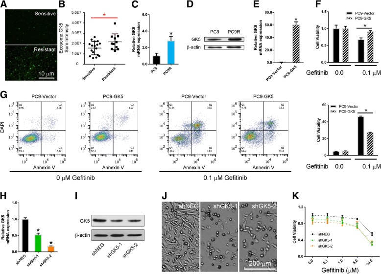 GK5 mediates gefitinib resistance. a Total Internal Reflection Fluorescence (TIRF) Microscopy images of exosomes isolated from plasma of EGFR TKI-sensitive and -resistant patients. b Exosomal GK5 mRNA in the plasma of gefitinib-sensitive and -resistant lung adenocarcinoma patients measured using TCLN biochips. c , d The RT-PCR and Western blotting on GK5 expression in gefitinib-sensitive PC9 and gefitinib-resistant PC9R cells. * p