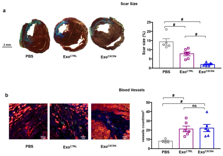 ( a ) Masson's Trichrome staining for the quantification of infarct size. Exo reduce scar size at 28 days after I/R. The reduction in scar size is more pronounced in Exo CXCR4 compared to Exo CTRL treated group ( n = 5 rats/group PBS, n = 6 rats/group Exo CTRL and Exo CXCR4 ). ( b ) Exo CTRL and Exo CXCR4 . increased blood vessel density. SMA, smooth muscle actin (green); TnI, Troponin I (red); nuclear counterstaining (blue); n = 4 rats/group PBS, n = 6 rats/group Exo CTRL and Exo CXCR4 ). # p