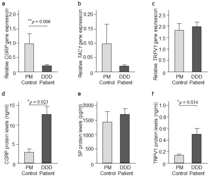 CGRP, SP, and TRPV1 expression. ( a ) Relative gene expression of CGRP ( n = 23 DDD patients and 14 PM control), ( b ) TAC1 ( n = 33 DDD patients and 16 PM control), and ( c ) TRPV1 ( n = 33 DDD patients and 17 PM control) in intervertebral disc (IVD) tissues retrieved from DDD patients and PM controls. Values reported are mean ± SEM. ** p ≤ 0.01, comparison between DDD patients and PM controls calculated by Student's t -test. ( d ) Protein levels of CGRP ( n = 30 DDD patients and 7 PM control), ( e ) SP (n = 25 DDD patients and 9 PM control), and ( f ) TRPV1 ( n = 28 DDD patients and 9 PM control) in cytosolic extracts retrieved from IVD tissues from DDD patients and PM controls. Values reported are mean ± SEM. * p ≤ 0.05, comparison between DDD patients and PM controls calculated by Student's t -test.