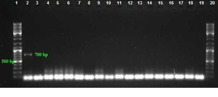 PCR assay for detection of bla SHV gene with product size: 700 bp. Lanes 3–18: Amplified products, Lane 2: Positive control, Lanes 1 and 20: DNA ladder 100 bp, Lane 19: Negative control