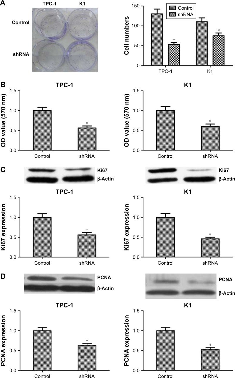 Knocking down NUCB2 in papillary thyroid cancer cells inhibited tumor cell proliferation by regulating Ki67 and PCNA. Notes: ( A ) Typical images of colony-forming assay and its quantification demonstrated that colony rate of shRNA group was significantly lower than control group (n=3, P