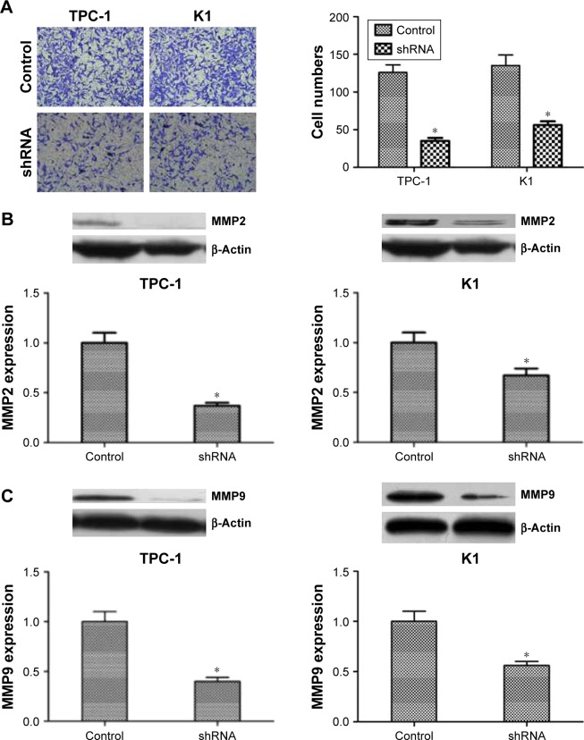 Downregulated expression of <t>NUCB2</t> inhibited the migration and invasion of thyroid cancer cells by regulating MMP2 and MMP9. Notes: ( A ) Transwell assay demonstrated that the ability of invasion in shRNA group was significantly decreased comparing to control group (n=3, P