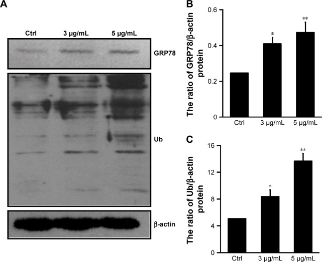 Effect of dicerandrol B on ERS in HeLa cells. Notes: ( A – C ) Western blot analysis of <t>GRP78</t> and Ub proteins in HeLa cells incubated with dicerandrol B (0, 3, or 5 µg/mL) for 12 hours. Data are presented as mean ± SD of three experiments. (* P