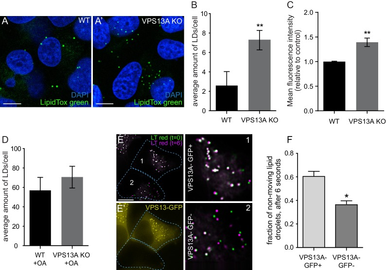 VPS13A negatively regulates LD mobility. ( A ) WT ( A ) and VPS13A KO MRC5 cells ( A' ) were stained with LipidTox green for LDs (green) and the nuclear marker DAPI (blue) and imaged by confocal microscopy. ( B ) Quantification of LD numbers in A. Error bars, mean ±s.e.m (n = 3), two-tailed unpaired Student's t-test was used (*p≤0.05, **p≤0.01). ( C ) WT and VPS13A KO MRC5 cells were stained with Nile red and intensity was measured using FACS. Error bars, mean ±s.e.m (n = 3), two-tailed unpaired Student's t-test was used (*p≤0.05, **p≤0.01). ( D ) WT and VPS13A KO MRC5 cells were exposed to 500 µM OA for 16 hr. Afterwards cells were stained with LipidTox green to visualize LDs and LD numbers were quantified. Error bars, mean ±s.e.m (n = 3), two-tailed unpaired Student's t-test was used. ( E ) HEK293T cells were transfected with VPS13A-GFP and stained with LipidTox red to visualize LDs in vivo. Images with a time interval of 6 s were recorded of VPS13-GFP positive (cell 1) and adjacent VPS13-GFP negative (cell 2) cells. The locations of LDs at t = 0 are indicated in green, the locations of the same LDs at t = 6 s are indicated in magenta ( E ). If the LD did not move between time frames, the overlapping signal (green and magenta) is white. The VPS13A signal is shown in E': Cell one is transfected with VPS13A-GFP; Cell two is a non-transfected cell. ( F ) Quantification of the fraction of non-moving (white) LDs compared to the total number of LDs in VPS13A-GFP positive or VPS13A-GFP negative cells. Error bars, mean ±s.e.m, two tailed unpaired Student's t-test was used (*p≤0.05). Scale bars = 10 µm (A, A', E,).