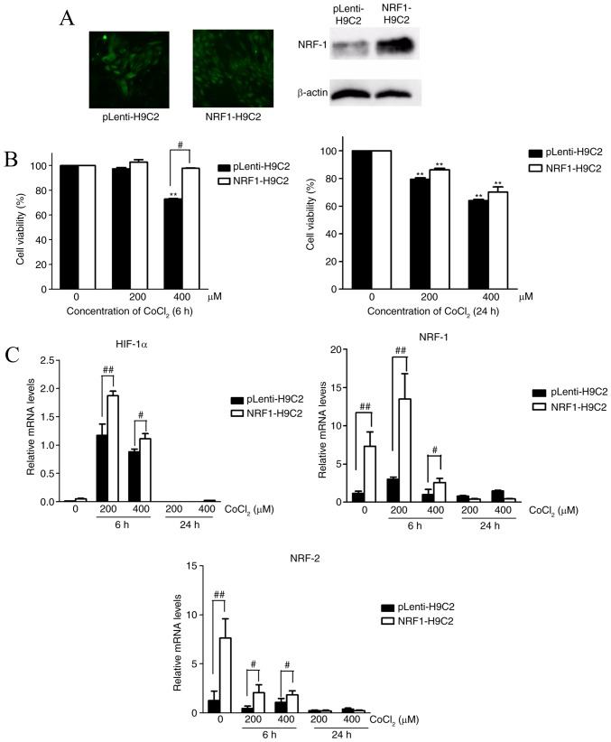 Effects of NRF-1 on the viability and mRNA expression levels of HIF-1α, NRF-1 and NRF-2 of H9C2 cells. CoCl 2 -treated H9C2 cells were cultured in DMEM plus 10% FBS containing 200 or 400 µM CoCl 2 for 6 or 24 h. (A) GFP expression in <t>lentiviral</t> vector-transfected H9C2 cells, as observed by fluorescence microscopy (left); western blot analysis of NRF-1 expression levels in pLenti-H9C2 and NRF1-H9C2 cells (right). (B) CCK-8 assays were used to detect cell viability following treatment of pLenti-H9C2 and NRF1-H9C2 cells with 200 or 400 µM CoCl 2 for 6 or 24 h. (C) Reverse transcription-quantitative polymerase chain reaction was used to analyze HIF-1α, NRF-1 and NRF-2 mRNA expression levels in pLenti-H9C2 and NRF1-H9C2 cells. **P