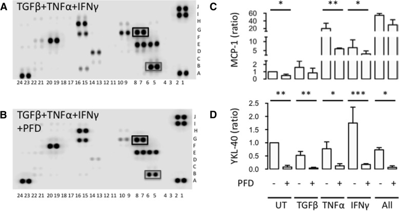 Effects of PFD on intracellular and membrane molecules characterizing differentiation and activity of SpA FLSs. a - b Images of membrane-based antibody array of SpA FLSs stimulated with TGFβ, TNFα, and IFNγ (TGFβ+TNFα+IFNγ) with or without pirfenidone (PFD). Black square marks MCP-1 and grey square marks YKL-40. c - d Column bar graph of MCP-1 and YKL-40 secretion by SpA FLSs untreated (UT) and stimulated with TGFβ, TNFα, IFNγ or all three cytokines (All) with or without PFD ( n = 4). Data were normalized to untreated cultures without PFD (ratio), log-transformed and analyzed with the paired t-test. Boxes and bars indicate median and IQR. * p