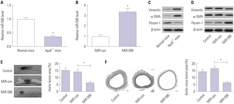 The effects of miR-590 on atherosclerotic lesion in HFD-induced apoE −/− mice. ApoE −/− mice were fed on a HFD for 12 weeks and injected with miR-590 or miR-control via tail vein once every 4 weeks after starting HFD. (A) qRT -PCR analysis of miR-590 expression in the aorta derived from apoE −/− mice fed on a HFD or wild-type C57BL/6 J controls fed on a normal diet. U6 was used as the normalization. (B) qRT-PCR analysis of miR-590 expression in HFD-fed apoE −/− mice injected with miR-590 or miR-control. U6 was used as the normalization. (C) Western blot analysis of the protein levels of Pecam-1, α-SMA and Vimentin in apoE −/− mice fed on a HFD or wild-type C57BL/6 J controls fed on a normal diet. (D) Western blot analysis of the protein levels of Pecam-1, α-SMA and Vimentin HFD-fed apoE −/− mice injected with miR-590 or miR-control. (E) Atherosclerotic plaque formation in the resected aortic sinuses was assessed by Evans blue staining. (F) The atherosclerotic lesion in aortic sinuses was examined by hematoxylin and eosin staining (×40). * p