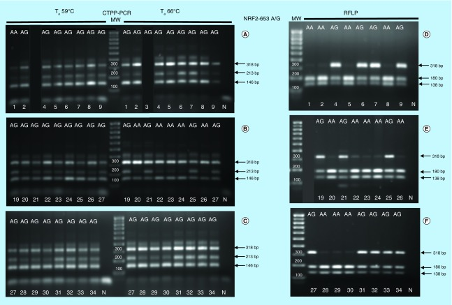 Comparison between CTPPCR and RFLP results for <t>NRF2</t> -653A/G. Confronting two-pair primers–polymerase chain reaction of NRF2 rs35652124 (-653 A/G) single nucleotide polymorphism performed at two different T a (59°- 66°C) using 1 unit/sample of Kapa Hot Start Taq polymerase (A–C) . Restriction fragment length polymorphism analysis after amplicon digestion with <t>BseRI</t> (D–F) . Sample ID and genotype are indicated by numbers and letters at the top and bottom of figures. N: Negative control indicates DNA template omission in the polymerase chain reaction; MW: Molecular weights (100 bp up to 1000 bp). The black lanes are irrelevant samples for which the corresponding confronting two-pair primers–polymerase chain reaction was not reported.