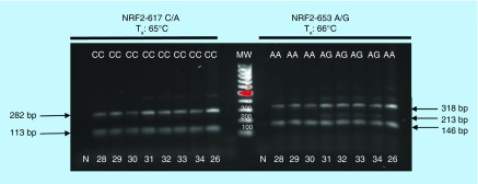 Confronting two-pair primers–polymerase chain reaction for NRF2 -617C/A and -653A/G was carried out at the indicated T a using 2.5U/sample of AmpliTaq Gold polymerase. N: Negative control indicates DNA template omission. MW: Molecular weights (100 bp up to 1000 bp).
