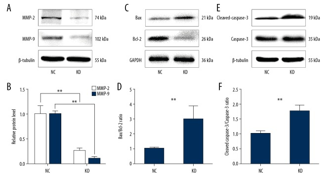 The expression of MMP-2, MMP-9, Bax, Bcl-2, cleaved caspase-3, and caspase-3 in the bEnd.3 mouse brain capillary endothelial cells. ( A, C, E ) Western blot s for protein expressions of MMP-2, MMP-9, Bax, Bcl-2, cleaved caspase-3, and caspase-3 in the NC and KD cell groups. β-tubulin and GAPDH were used as the housekeeping proteins. ( B, D, F ) Bar graphs showed the quantification of MMP-2, MMP-9 protein expression and the Bax/Bcl-2 ratio and cleaved caspase-3/caspase-3 ratio in the NC and KD cell groups. Data are presented as the mean ±SD. ** P