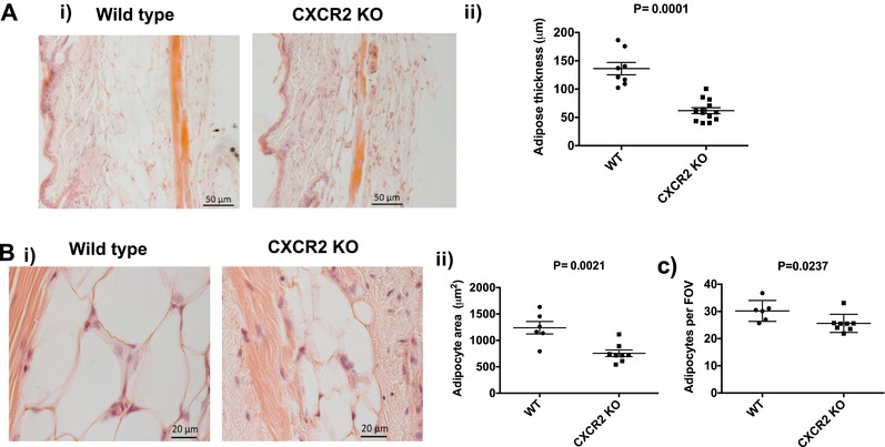 Female CXCR2 KO mice have a thinner subcutaneous adipose layer due to fewer and smaller adipocytes . Skin was dissected from adult female mice before processing and H E staining of sections from wild‐type and CXCR2 KO mice. (A) (i) Brightfield microscopy was used to take images of the skin (scale bars: 50 μm) and (ii) thickness of the adipocyte layer was systematically measured. (B) (i) the subcutaneous adipose depot was further imaged at high magnification (scale bars: 20 μm) and (ii) the size of individual adipocytes measured and expressed as μm 2 . (C) In addition, the number of individual adipocytes contained in the adipocyte layer (per field of view; FOV) was quantified. Data are plotted as mean (± sem ) (Aii and Bii) or (±SD) (C) from one experiment containing at least 5 mice in each group, representative of at least 2 separate experiments. Each symbol represents an individual mouse. Data were analyzed with an unpaired t test with Welch's correction (i), unpaired t test (ii) and a Mann‐Whitney test (iii)