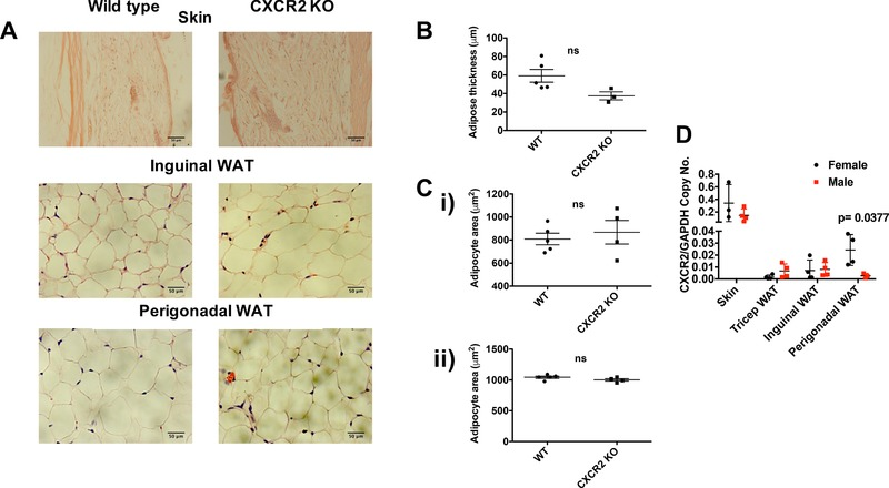 CXCR2 KO male mice have no significant change in adipocyte size compared to wild‐types . (A) Skin and adipose depots were dissected from adult male mice ( > 8 wk) before processing and H E staining of sections from wild‐type and CXCR2 KO mice. Brightfield microscopy was used to take images of the skin, inguinal adipose, or perigonadal adipose tissue (scale bars: 50 μm). (B) Adipose thickness and (C) individual adipocyte area for (i) inguinal and (ii) perigonadal sites were measured. (D) Quantitative real‐time PCR was used to analyze CXCR2 expression in skin or adipose tissues from male and female mice, relative to the house‐keeping gene, GAPDH. Data are plotted as mean (± sem ), where each symbol represents data from an individual mouse and analyzed using an unpaired t test or Welch's t test (D), ns = not significant