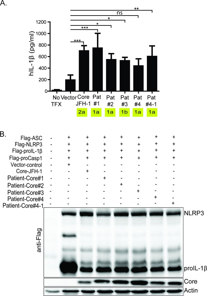 Core from HCV infected patients variably stimulate NLRP3 inflammasome activation. (A) IL-1β ELISA. HCV core, from acutely infected individuals, expressing constructs co-transfected with NLRP3 inflammasome components. (B) western blot depicting the expression of the patient-derived core as well as the inflammasome components. Experiments were performed with three replicates and are representative of four independent experiments. Data are represented as means and +/- SD, *P