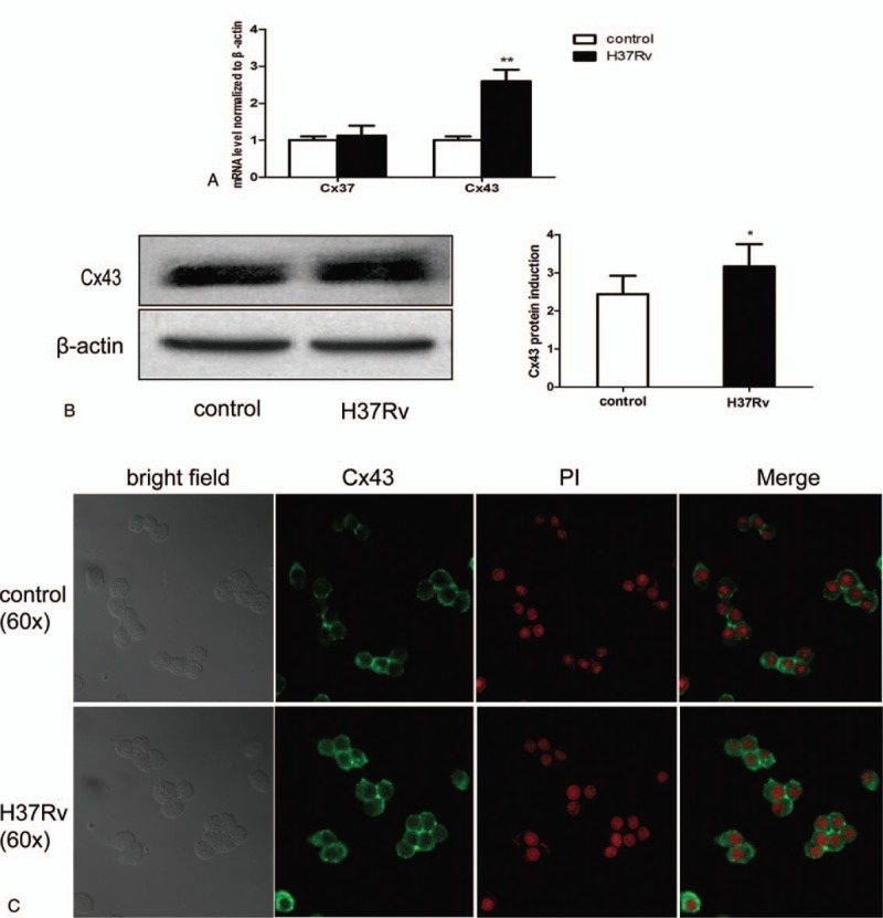 H37Rv infection induces host macrophage connexin expression. RAW264.7 cells were infected by H37Rv strains for 12 hours. Total RNA and protein were tested using RT-PCR (Cx37 and Cx43 mRNA) (A) and Western blotting (Cx43 protein) (B). Both the control and infection cells were collected and tested using immunofluorescence analysis (C). Data are expressed as mean±SD from 3 independent experiments. ∗ P