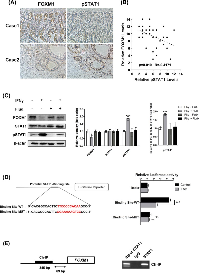 STAT1 directly suppresses FOXM1 expression in pancreatic cancer cells ( A ) Staining of the same cohorts of pancreatic tumor sections for FOXM1 expression and pSTAT1 level. ( B ) The negative correlation of FOXM1 expression with the pSTAT1 level, as assessed using Pearson correlation coefficient analysis ( n =37, r = −0.417, P