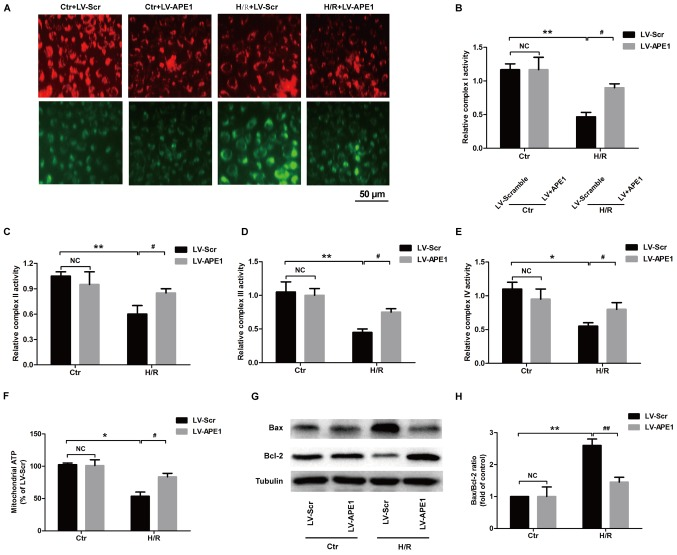 Effects of APE1 overexpression on mitochondrial function in H/R-treated H9c2 cells. H9c2 cells were transfected with LV-APE1 or LV-Scr and subjected to H/R. (A) The mitochondrial membrane potential was detected using JC-1 staining. (B) Complex I, (C) complex II, (D) complex III and (E) complex IV activities were detected using microplate assay kits. (F) <t>ATP</t> production was assessed using the <t>CellTiter-Glo</t> luminescent ATP assay kit. (G) Bax/Bcl-2 ratio was measured using western blotting and (H) quantified. *P
