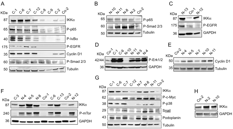 Molecular characterization of the different isolated clones that overexpress IKKα in the cytoplasm or in the nucleus of the H460 cells. (A) WB of total protein extracts showing the hybridization of different C-H460-IKKα pools with the indicated antibodies. Note that those clones with increased levels of IKKα (C-1, C-6, C-7 and C-12) exhibit overactivation of the classical NF-κB pathway (elevated levels of P-p65 and P-IκBα); as well as activation of EGFR (measured as P-EGFR). They also present increased levels of Cyclin D1 expression with respect to the values observed in the Control-H460 cells and those of the clones that do not express the transgene (C-8, C-9 and C-2). (B) Levels of P-p65 in the N-H460-IKKα cells are similar to those of Control cells, indicating that no enhanced activation of the NF-κB is observed when IKKα is expressed in the nucleus of the H460 cells. Enhanced P-Smad2/3 is also detected in the N-H460-IKKα mice, while it is not enhanced in the C-H460-IKKα cells (A). (C) WB showing overactivation of EGFR in the C-H460-IKKα cells, but not in the N-H460-IKKα ones. (D) Increased activation of Erk1/2 is observed in both types of cells overexpressing IKKα. (E) Levels of Cyclin D1 are increased in the N-H460-IKKα clones regarding the values in the Control-H460 cells. (F) Overactivation of mTor (increased levels of P-mTor) is detected in both C-and-N-H460-IKKα cells. (G) N-H460-IKKα cells present increased levels of P-c-Myc and Snail. Increased levels of P-p38 and Podoplanin are observed in the C-and-N-H460-IKKα cells. (H) Levels of IKKα expression in the N-H460-IKKα pools N-2 and N-10 are shown. Tubulin and GAPDH are used as loading control. Different C– H460-IKKα, N-H460-IKKα and Control-H460 pools are shown.