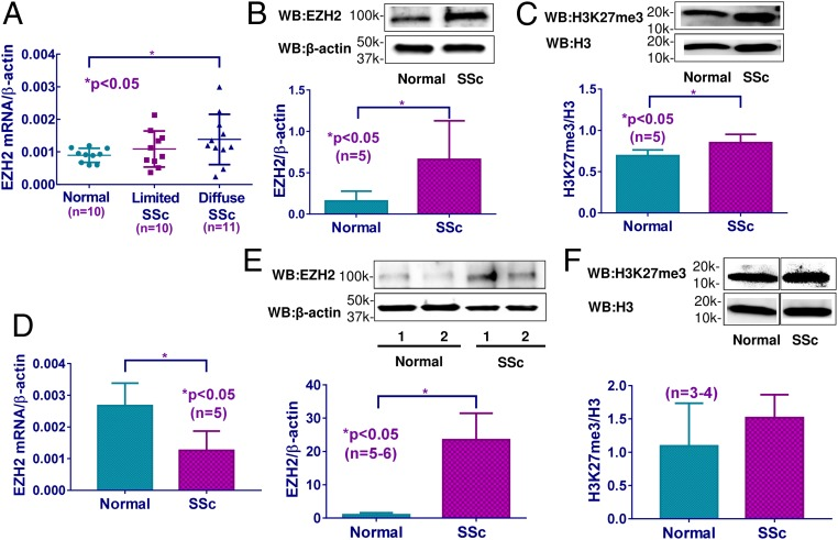 The expression of EZH2 and H3K27me3 in SSc fibroblasts and ECs. ( A ) EZH2 mRNA levels were significantly elevated in fibroblasts from diffuse cutaneous SSc patients compared with healthy fibroblasts, but not in limited cutaneous SSc fibroblasts. EZH2 protein levels ( B ) and H3K27me3 levels ( C ) were significantly increased in diffuse cutaneous SSc fibroblasts compared with healthy controls. ( D ) EZH2 mRNA levels were significantly lower in diffuse cutaneous SSc ECs compared with healthy ECs. ( E ) EZH2 protein levels were significantly higher in diffuse cutaneous SSc ECs compared with healthy ECs. ( F ) The expression of H3K27me3 was not significantly different between diffuse cutaneous SSc ECs and healthy controls. Results are expressed as mean ± SD. The Mann–Whitney U test was performed, and * P