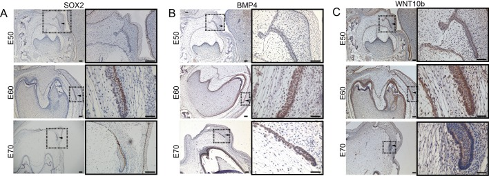 The expression of candidate genes in the developing mandibular p4 and successional dental lamina in frontal sections of WZSP embryo. (A) SOX2, (B) BMP4 and (C) WNT10b immunohistochemical stain. (A–C) Right panels show the enlarged successional dental lamina, shown with an arrowhead inside the boxed area in the left panels. Scale bars: 500 μm (left panels), 50 μm (right panels).