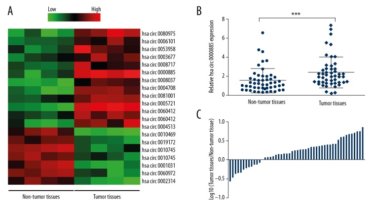 hsa_circ_0000885 expression was upregulated in osteosarcoma tissue. ( A ) The heatmap shows the circRNA expression profiles of osteosarcoma tissues and adjacent non-tumor tissues. Red and green indicate high and low expression, respectively. ( B ) Expression levels of hsa_circ_0000885 in 50 pairs of osteosarcoma tissues and adjacent non-tumor tissues, analyzed by quantitative real-time polymerase chain reaction (qRT-PCR) and normalized to GAPDH. The results were analyzed using the 2 −ΔΔCT method and compared using paired Student's t-tests. ( C ) Relative hsa_circ_0000885 expression ratios in osteosarcoma tissues versus adjacent non-tumor tissues shown on the logarithmic scale. Data are shown as the means ± standard deviation (SD). *** P