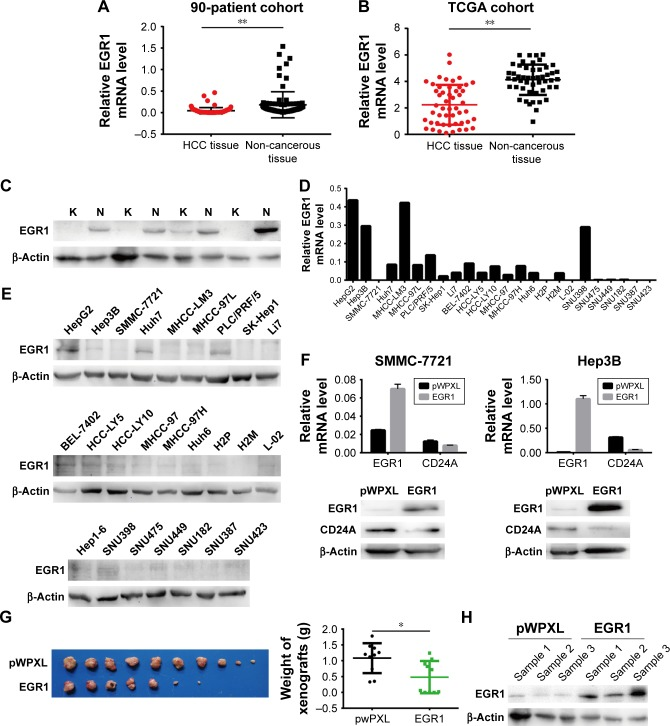 EGR1 is downregulated in HCC tissues and represses CD24A expression in human HCC cells. Notes: ( A ) mRNA expression of EGR1 in 90 pairs of HCC tissues and corresponding adjacent non-cancerous liver tissues was detected by qPCR; ( B ) mRNA expression of EGR1 in 50 pairs of HCC tissues and corresponding adjacent non-cancerous liver tissues in the TCGA database was analyzed; ( C ) Western blotting was performed to detect the expression of EGR1 in four pairs of HCC tissues (K) and corresponding adjacent non-cancerous liver tissues (N); ( D , E ) the expression of EGR1 in human HCC cell lines was assessed via qPCR and Western blotting; ( F ) qPCR (top panel) and Western blotting (bottom panel) analyses of EGR1 and CD24A in EGR1-overexpressing SMMC-7721 and Hep3B cells; ( G ) tumor xenografts were collected from BALB/c (nu/nu) mice inoculated with Li7 cell lines stably overexpressing EGR1 or control (pWPXL) vectors (left panel). Xenografts were weighed and analyzed (right panel); n=10; ( H ) the EGR1 protein level was detected by Western blotting in xenograft tissue samples. β-Actin was used as the loading control. * P