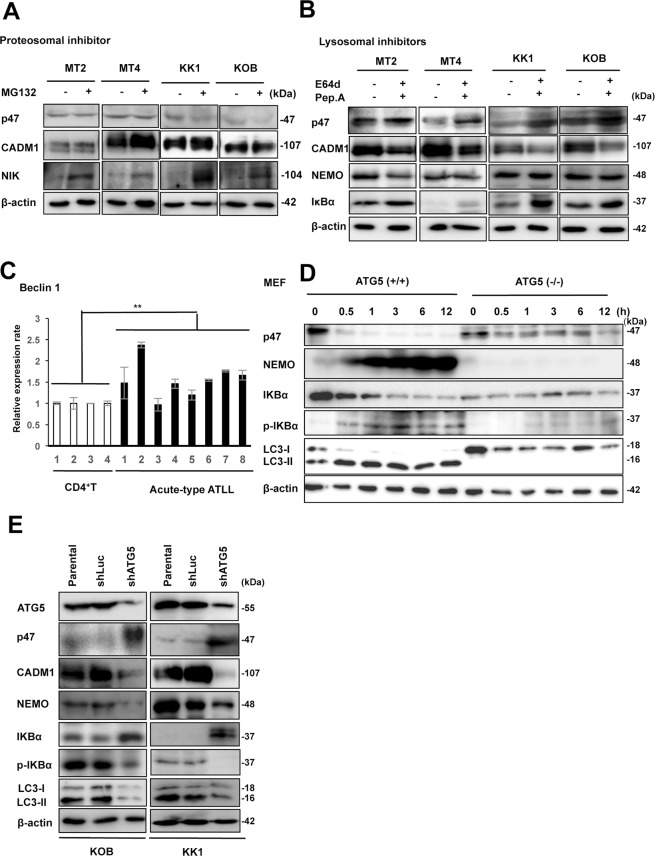 p47 protein is efficiently degraded by the lysosome-dependent pathway in ATLL-related cell lines. ( A ) Immunoblot analysis of p47, CADM1, and NIK was performed in two HTLV-1-infected T-cell lines (MT2 and MT4) and two ATLL cell lines (KK1 and KOB) after treatment with or without MG132 for 48 hours. β-actin was used as a loading control. The cropped gels/blots are used in the figure, and the full-length gels/blots are presented in Supplementary Fig. S7 . ( B ) Immunoblot analysis of p47, CADM1, NEMO, and IκBα was performed in two HTLV-1-infected T-cell lines (MT2 and MT4) and two ATLL cell lines (KK1 and KOB) after treatment with or without E64d and pepstatin A for 48 hours. β-actin was used as a loading control. The cropped gels/blots are used in the figure, and the full-length gels/blots are presented in Supplementary Fig. S7 . ( C ) Relative expression of Beclin 1 was determined by quantitative RT-PCR in CD4 + T-cells from four healthy cases and leukemia cells from eight acute-type ATLL patients. The data represent the means ± S.D. of triplicate experiments and are presented relative to control CD4 + T-cells (lane 1). ** P