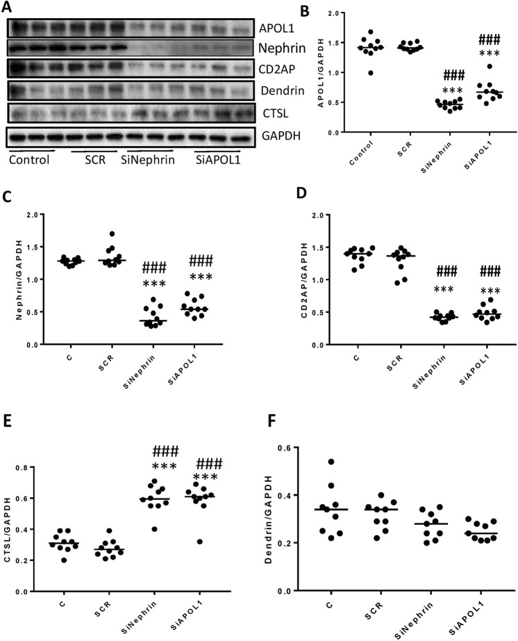 Evaluation of the effects of lack of APOL1 and Nephrin on the stability of adherens complex. ( A ) DPDS were transfected with either scrambled (SCR), APOL1- or nephrin-siRNAs (n = 10). Protein blots of control ( C ), DPD-transfected with SCR/SiRNA nephrin/siRNA APOL1 were probed for CD2AP, nephrin, APOL1, dendrin, and CTSL (n = 10). The same blots were reprobed for GAPDH. Gels from three different cellular lysates are displayed. ( B – F ) Cumulative densitometric data for each variable (protein/GAPDH) are shown as dot plots. ***p