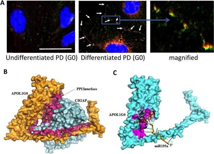 An interaction between APOL1 and CD2AP at the plasma membrane. ( A ) Undifferentiated and differentiated PDG0 grown on coverslips were co-labeled for APOL1 and CD2AP. Representative fluoromicrographs are shown. Undifferentiated PDs displayed scattered labeling for APOL1 (red fluorescence) and CD2AP (green fluorescence). Differentiated PD showed co-labeling for APOL1 and CD2AP (yellow fluorescence, indicated by white arrows) at adherent junctions. Horizontal solid white bar represents the scale as 100 µm. ( B ) The CD2AP binds to the APOL1 in the carboxy-terminal region and residues from Membrane Addressing Domain (MAD) of APOL1 are also interacting with residues of CD2AP. Hotspot residues in the protein-protein interaction interface of APOL1G0 (Raspberry) and CD2AP (Warm pink). ( C ) The interaction interface of APOL1G0 and miR193a has a total interface area of 1339.1 Å 2 and the solvation free energy gain upon formation of interface Δ i G is −34.3 kcal/mol. The solvation free energy of folding for the corresponding structure ΔG is −263.1 kcal/mol. The hotspot residues (magenta) in the miRNA-Protein interaction interface of APOL1G0 and miR193a. The 5′ end of miR193a binds to the 3′ UTR region of APOL1G0 mRNA (36) and displayed symbolically on protein surface.