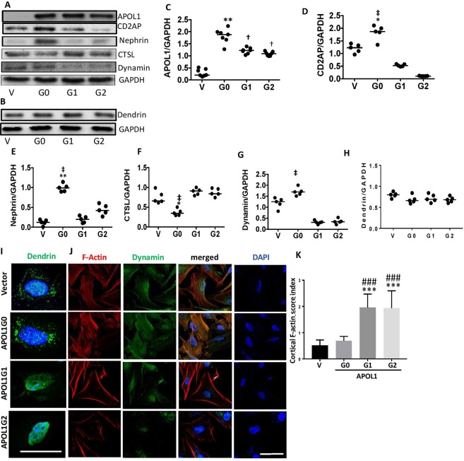 APOL1 risk alleles destabilize the adherens complex. ( A ) Protein blots of DPDs stably over-expressing Vector (V), G0, G1, and G2 were probed for APOL1, nephrin, <t>CD2AP,</t> dynamin, CTSL, and GAPDH (n = 5–7). Representative gels are displayed. ( B ) Protein blots of the above lysates were probed for dendrin and reprobed for GAPDH (n = 5). ( C – H ) Cumulative densitometric data on each variable (protein/GAPDH) are shown as dot plots. *