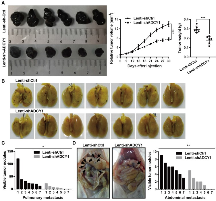 ADCY1 knockdown phenocopies the effects of miR-23a-3p overexpression in vivo . (A) HMVII cells stably transfected with shADCY1 were subcutaneously injected into NOD/SCID mice, the tumor volumes were monitored, and tumor weights were measured after the mice were sacrificed on day 30. (B-D) HMVII cells stably transfected with shADCY1 were injected via the lateral tail vein into NOD/SCID mice, metastatic colonies were counted and quantitatively analyzed, and representative lung (B) and intra-abdominal (D) metastases images are shown. * P