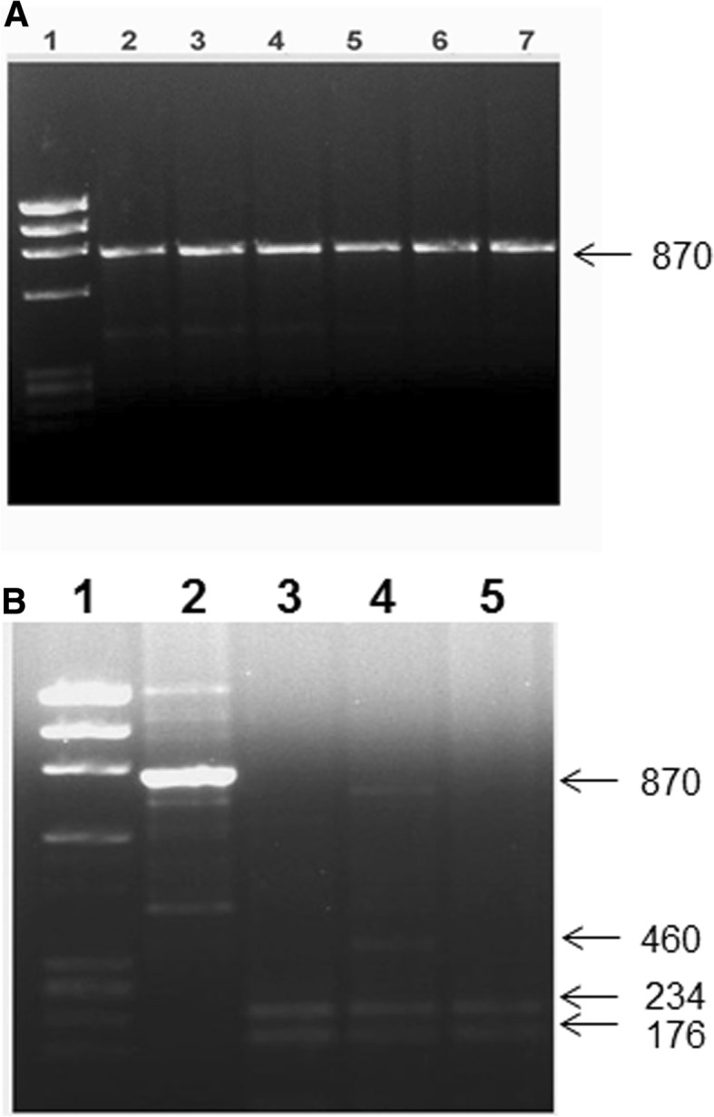 Detection of VDR gene Bsm I polymorphism. PCR amplification of genomic DNA was carried out and the products of amplification were cleaved with restriction enzyme Mva I (details given in Methods ). A: lane 1, phiX174 Hae III cut M r markers; lane 2, uncleaved PCR product; lanes 3–7, cleavage products from subjects with BB genotype. B: lane 1, ϕX174 Hae III cut M r markers; lane 2, uncleaved PCR product; lane 3,5, cleavage products from subjects with bb genotype; lanes 4, cleavage products from subjects having Bb genotype. The numbers on the side are sizes (bp) of the characteristic bands resulting from PCR-RFLP analysis of the subjects having different genotypes. The restriction enzyme cleavage products were analyzed on 2% agarose gel and visualized under UV light after staining with Ethidium bromide