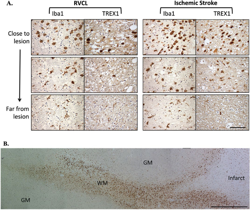 Immunohistochemical staining in white matter lesions with anti-TREX1. A. Staining for Iba1 and TREX1 in white matter lesions from cases with RVCL (left) or ischemic stroke (right). Representative images from chronic lesions are shown (400x magnification) with each successive image taken from two high-powered fields away. Staining for Iba1 and TREX1 is developed with DAB (brown). Nuclei are counterstained with hematoxylin (blue). Scale bar represents 100 μm. B. Panoramic view of the morphological changes in TREX1 + cells around a chronic lesion in ischemic stroke (right side) and their tracking in the adjacent white matter (WM) with relative absence of TREX1 + cells in the gray matter (GM). Similar findings are noted in RVCL lesions. Scale bar represents 1 mm.