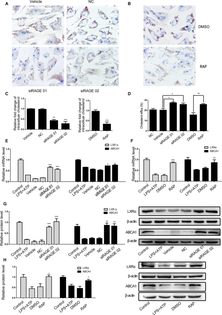 NLRP 3 inflammasome‐dependent HMGB 1 secretion reduces LXR α and ABCA 1 expression through binding to RAGE in VSMC s. Following NLRP 3 silencing, pretreatment with RAP , a RAGE antagonist peptide and LPS / ATP stimulation in the presence or absence of Chol:Mβ CD , the cholesterol accumulation in VSMC s was characterized and the relative levels of LXR α and ABCA 1 expression were determined by qRT ‐ PCR and Western blot. Data are representative images or expressed as the mean± SD of each group from 3 separated experiments (Western blot) or 3 separated experiments with 3 duplicated wells ( qRT ‐ PCR and Cholesterol Efflux Fluorometric Assay). A through C, The cholesterol accumulation in VSMC s. D, The cholesterol efflux in VSMC s. E through H, The relative levels of LXR α and ABCA 1 expression in the different groups of VSMC s. * P