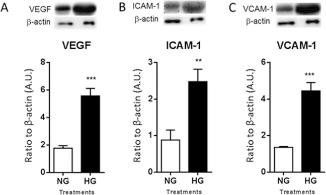 Protein levels of human VEGF ( A ), ICAM-1 ( B ), and VCAM-1 ( C ) as detected by Western blot in cellular lysates. HRECs were co-cultured with PMNs for 28 days under normal glucose (NG) or high glucose (HG) conditions. One representative cropped image is provided for each Western blot. N = 5/group; results are expressed as mean ± SD. ** P