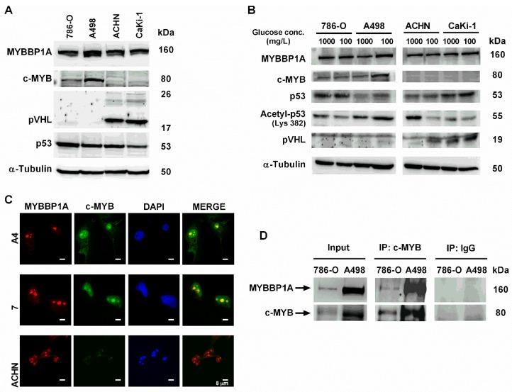 Characterization of MYBBP1A expression and MYBBP1A binding to c-MYB in renal carcinoma cell lines. ( A ) Measurement of MYBBP1A, c-MYB, p53 and pVHL levels in renal carcinoma cell lines A498, 786-O, ACHN and CaKi-1 by western blot. Cells were cultured in 4500 mg/L glucose media. ( B ) Measurement of MYBBP1A, c-MYB, p53, acetyl-p53 and pVHL levels in A498, 786-O, ACHN and CaKi-1 by western blot. Cells were cultured in 1000 mg/L or 100 mg/L glucose media. ( C ) MYBBP1A and c-MYB co-localize in the nucleolus of renal carcinoma cell lines. Cells were stained using DAPI (nuclear control), MYBBP1A and c-MYB antibodies. Scale Bar: 8 µM. ( D ) Co-immunoprecipitation of c-MYB and MYBBP1A in renal carcinoma cells. Protein extracts from 786-O and A498 were subject to immunoprecipitation with c-MYB or normal IgG antibodies. The resultant immunoprecipitates were then analyzed by WB with c-MYB and MYBBP1A antibodies.