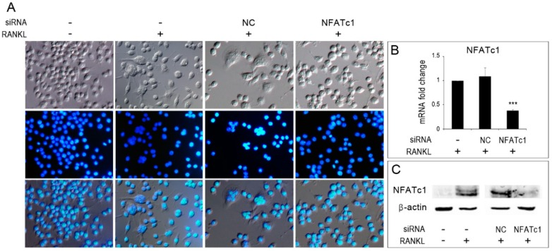 Inhibition of osteoclastogenesis by silencing of NFATc1. Untransfected, siRNA-non correlated (NC) and siRNA-NFATc1 transfected cells were cultured with RANKL (50 ng/mL) for 24 h. Control untransfected cells were cultured without RANKL. ( A ) Cells were fixed, stained with DAPI (which stains the nuclei blue) and observed by DIC (upper row) and immunofluorescence (middle row) microscopy. Bottom row shows merged images. ( B ) Quantitative PCR (QPCR) of NFATc1 . mRNA expression was presented as relative values to those expressed in untransfected cells (−/+RANKL) arbitrarily set at 1.0. The results shown are the means ± SD of two experiments (each of which was performed in triplicate). *** p