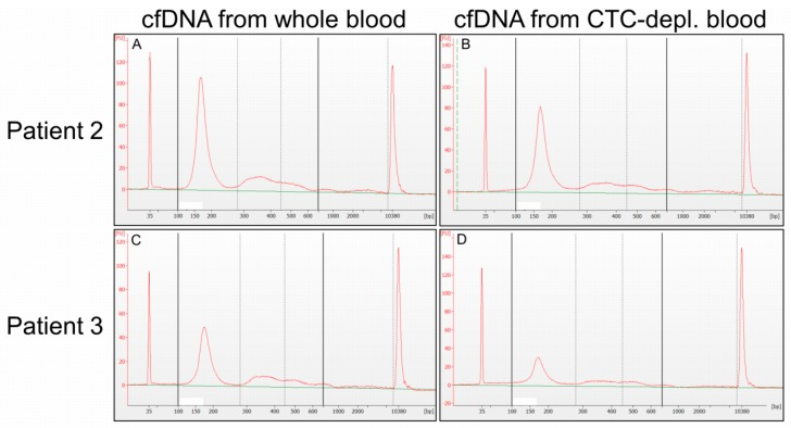 Size distribution of cfDNA. Matched cfDNA samples isolated from CTC-depl. blood ( B , D ; CTC isolation using AdnaTest EMT-2/StemCell Select) and from whole blood ( A , C ) of two exemplary patients ( A + B ; C + D ) displayed a large mononucleosomal fraction and, in general, a similar size distribution without high-molecular-weight DNA (700–10,000 bp). Capillary electrophoresis was performed with an Agilent High Sensitivity Chip. (A) Cell-free DNA eluate from whole blood of patient 2, diluted 1:40; ( B ) cfDNA eluate from CTC-depl. blood of patient 2, diluted 1:40; ( C ) cfDNA eluate from whole blood of patient 3, diluted 1:5; (D) cfDNA eluate from CTC-depl. blood of patient 3, diluted 1:20.