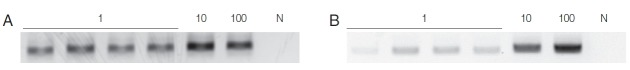 Sensitivity of HY-PCR tested with varying numbers of trophozoites (1, 10, 100) of T. vaginalis . (A) Chelex ® 100, (B) QIAamp ® DNA Mini Kit were used for DNA extraction. The PCR product formed a 318 bp band. N, Negative control (DW); 1, 10, 100, number of trichomonads used.